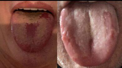 Photo of Lengua Covid: el nuevo síntoma que podría alertar de una infección de coronavirus