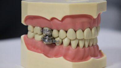 Photo of Crean dispositivo para bajar de peso cerrando los dientes con un candado