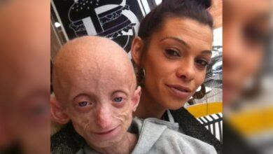 Photo of Murió Ashanti Smith, quien tenía la enfermedad de Benjamin Button