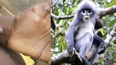 Photo of Identifican caso de viruela de mono en Texas