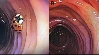 Photo of Hombre se hace una colonoscopia; médicos hallan una catarina viva en su intestino
